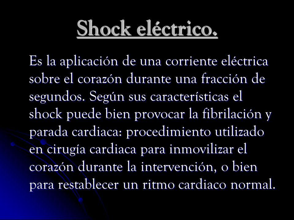 Shock eléctrico.