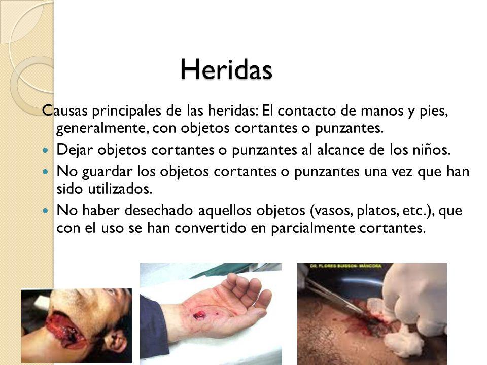 Heridas Causas principales de las heridas: El contacto de manos y pies, generalmente, con objetos cortantes o punzantes.