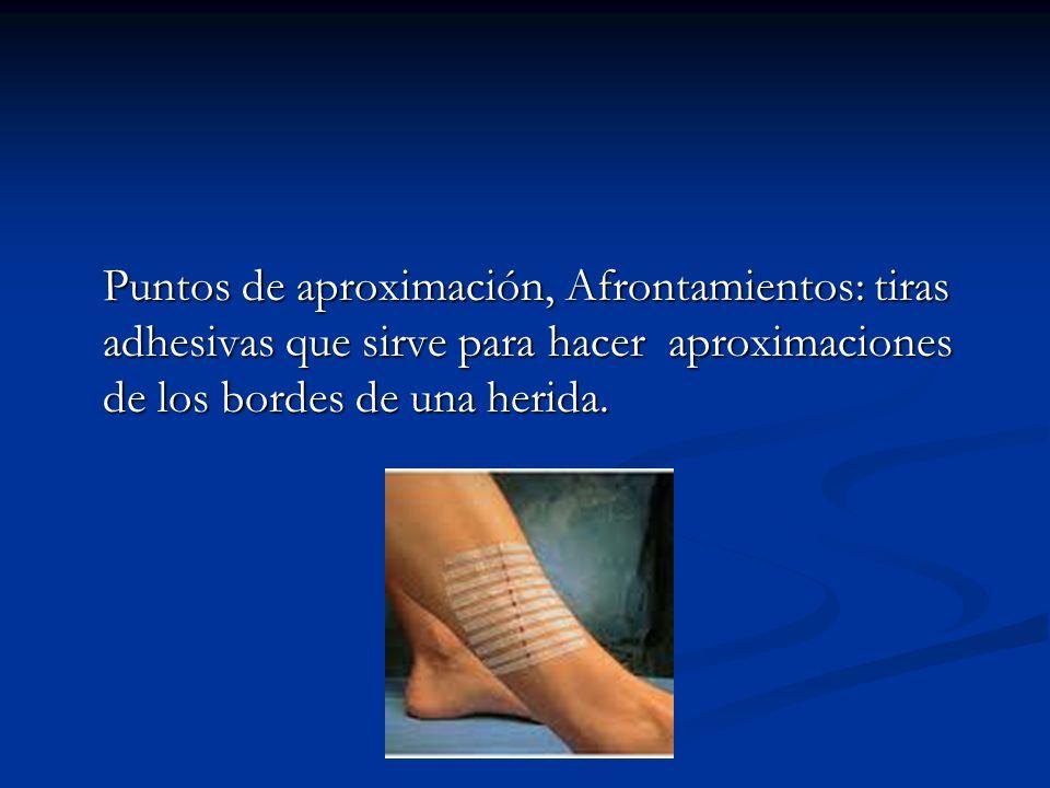 Puntos de aproximación, Afrontamientos: tiras adhesivas que sirve para hacer aproximaciones de los bordes de una herida.