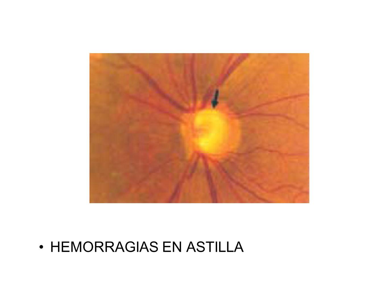 HEMORRAGIAS EN ASTILLA