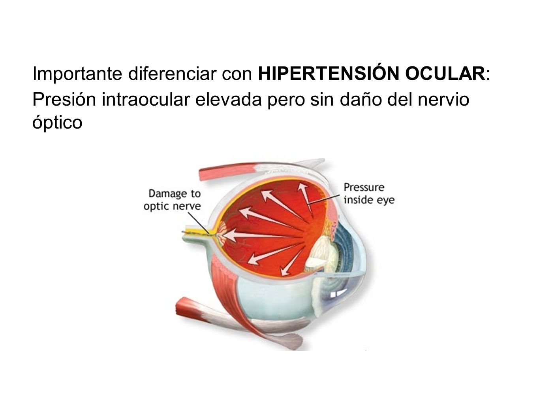 Importante diferenciar con HIPERTENSIÓN OCULAR: