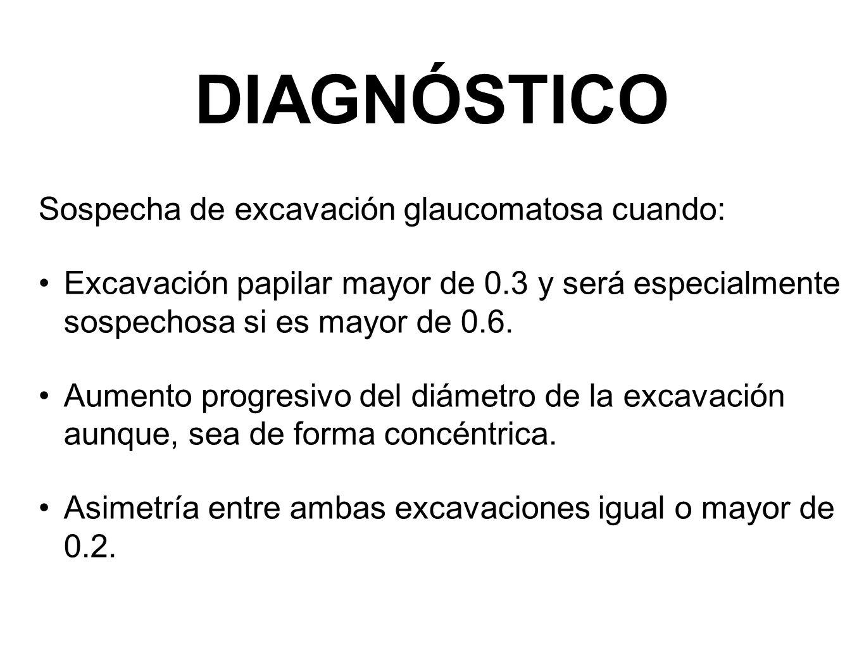 DIAGNÓSTICO Sospecha de excavación glaucomatosa cuando: