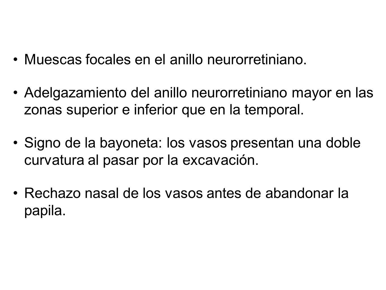 Muescas focales en el anillo neurorretiniano.