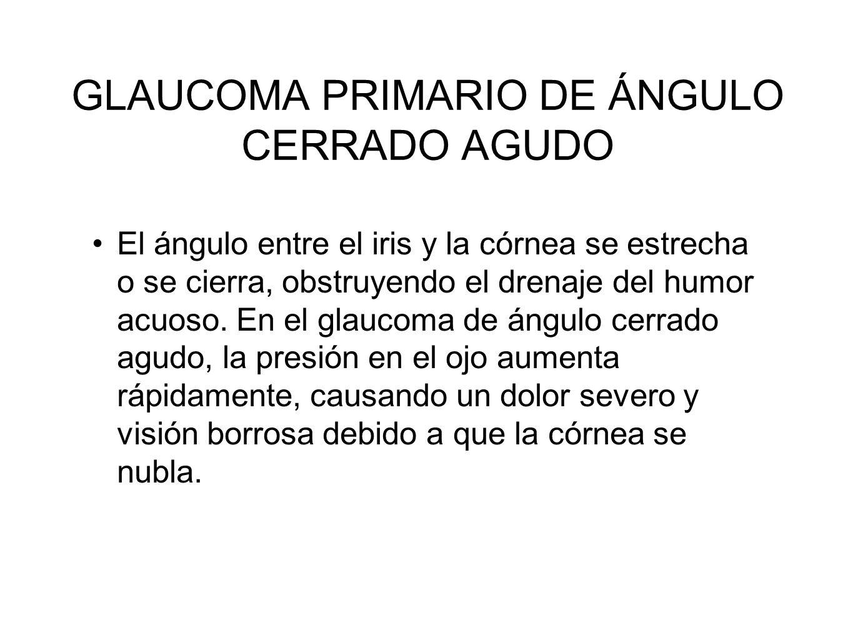 GLAUCOMA PRIMARIO DE ÁNGULO CERRADO AGUDO