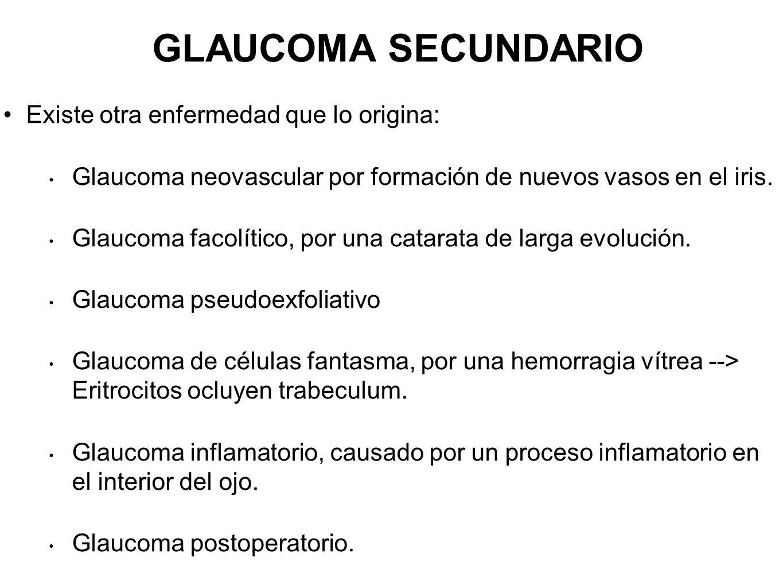 GLAUCOMA SECUNDARIO Existe otra enfermedad que lo origina: