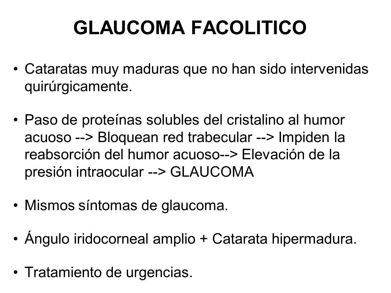 GLAUCOMA FACOLITICOCataratas muy maduras que no han sido intervenidas quirúrgicamente.