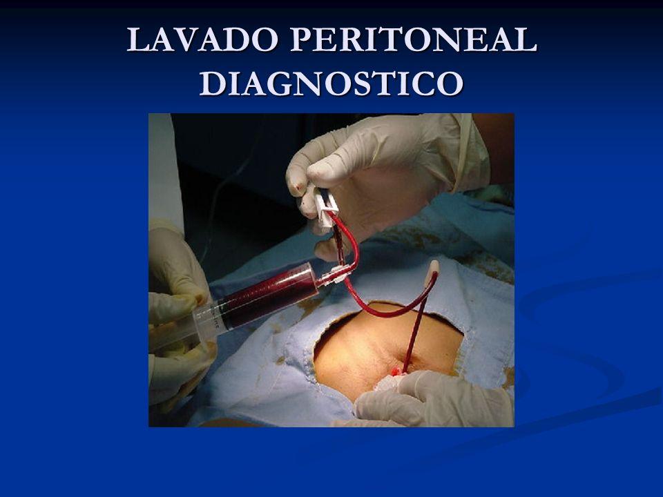 LAVADO PERITONEAL DIAGNOSTICO