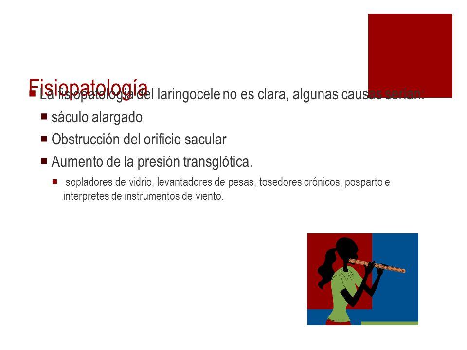 Fisiopatología La fisiopatología del laringocele no es clara, algunas causas serían: sáculo alargado.