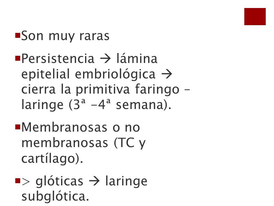 Son muy raras Persistencia  lámina epitelial embriológica  cierra la primitiva faringo – laringe (3ª -4ª semana).