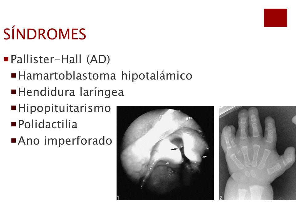 SÍNDROMES Pallister-Hall (AD) Hamartoblastoma hipotalámico