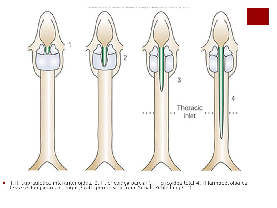 Type 1: supraglottic interarytenoid cleft