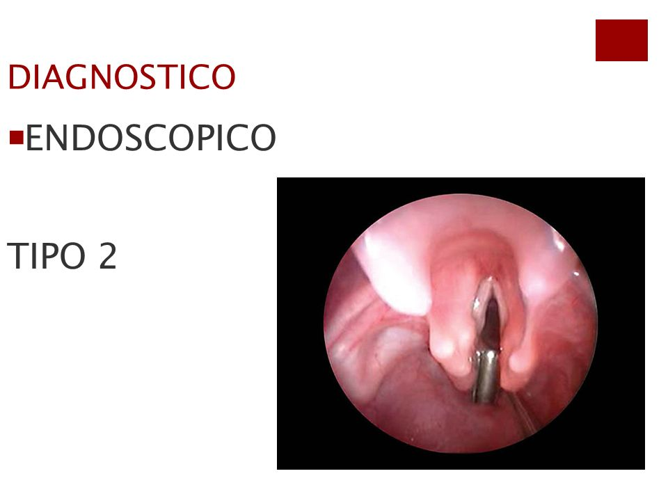 DIAGNOSTICO ENDOSCOPICO TIPO 2