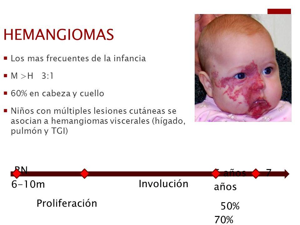 HEMANGIOMAS RN 6-10m Proliferación Involución 5 años 7 años 50% 70%