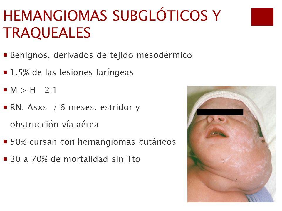 HEMANGIOMAS SUBGLÓTICOS Y TRAQUEALES