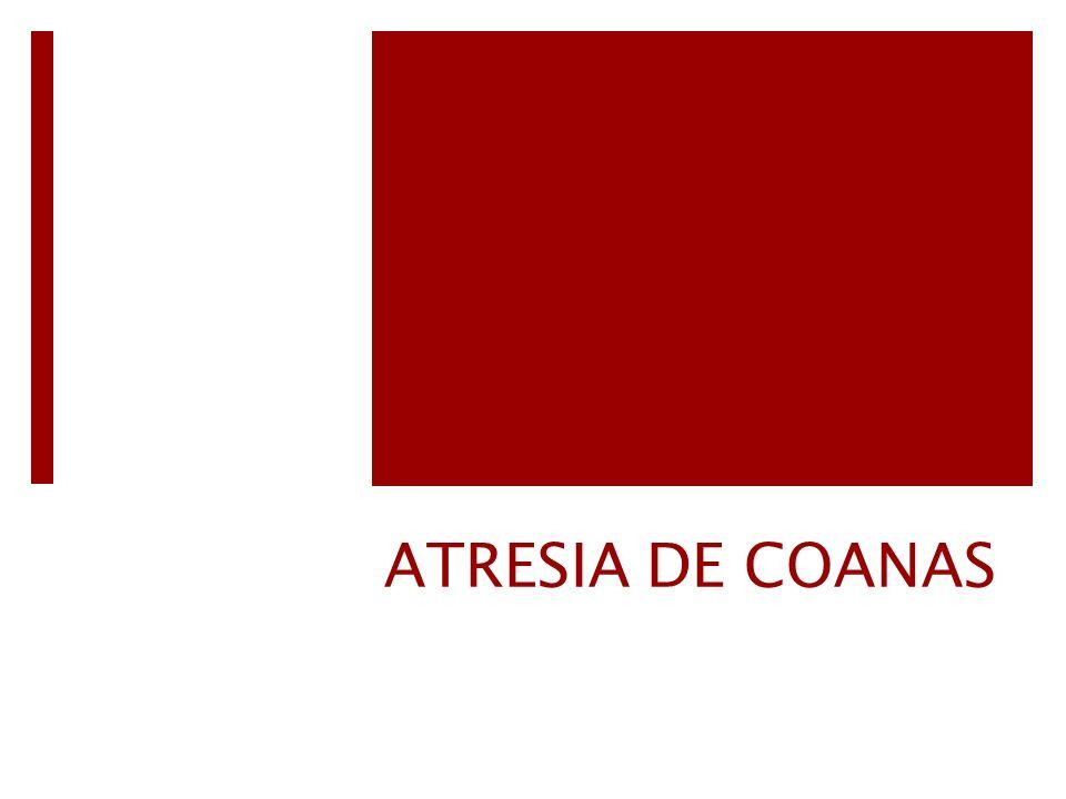 ATRESIA DE COANAS