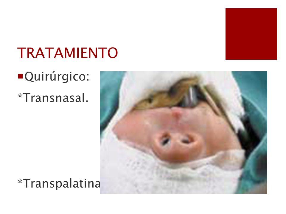 TRATAMIENTO Quirúrgico: *Transnasal. *Transpalatina.