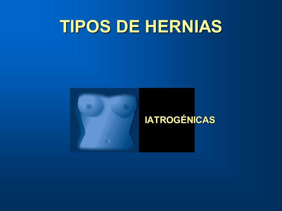 TIPOS DE HERNIAS IATROGÉNICAS