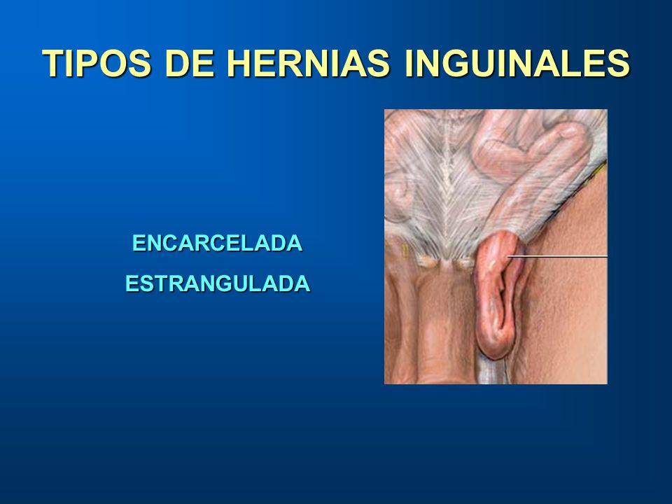 TIPOS DE HERNIAS INGUINALES