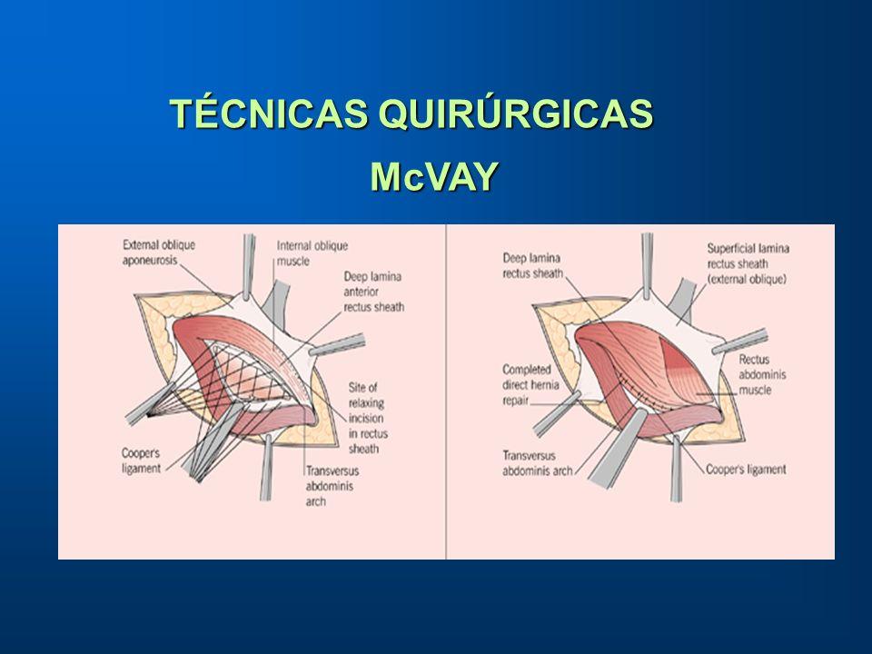 TÉCNICAS QUIRÚRGICAS McVAY