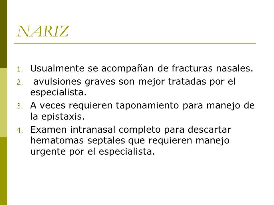 NARIZ Usualmente se acompañan de fracturas nasales.