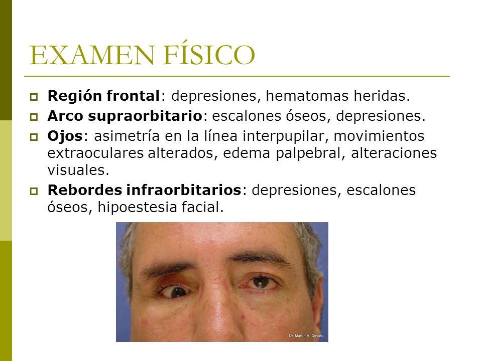 EXAMEN FÍSICO Región frontal: depresiones, hematomas heridas.
