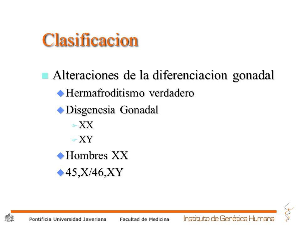 Clasificacion Alteraciones de la diferenciacion gonadal