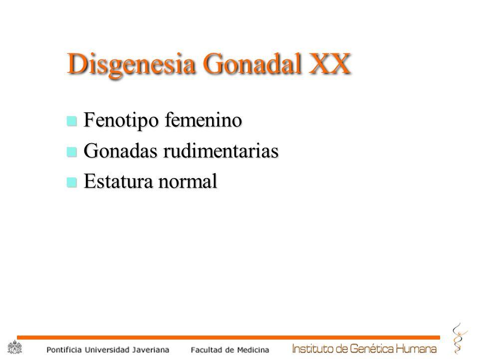 Disgenesia Gonadal XX Fenotipo femenino Gonadas rudimentarias