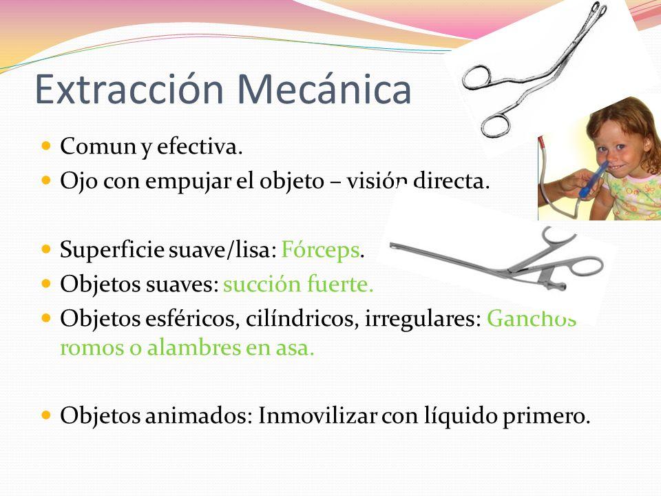 Extracción Mecánica Comun y efectiva.