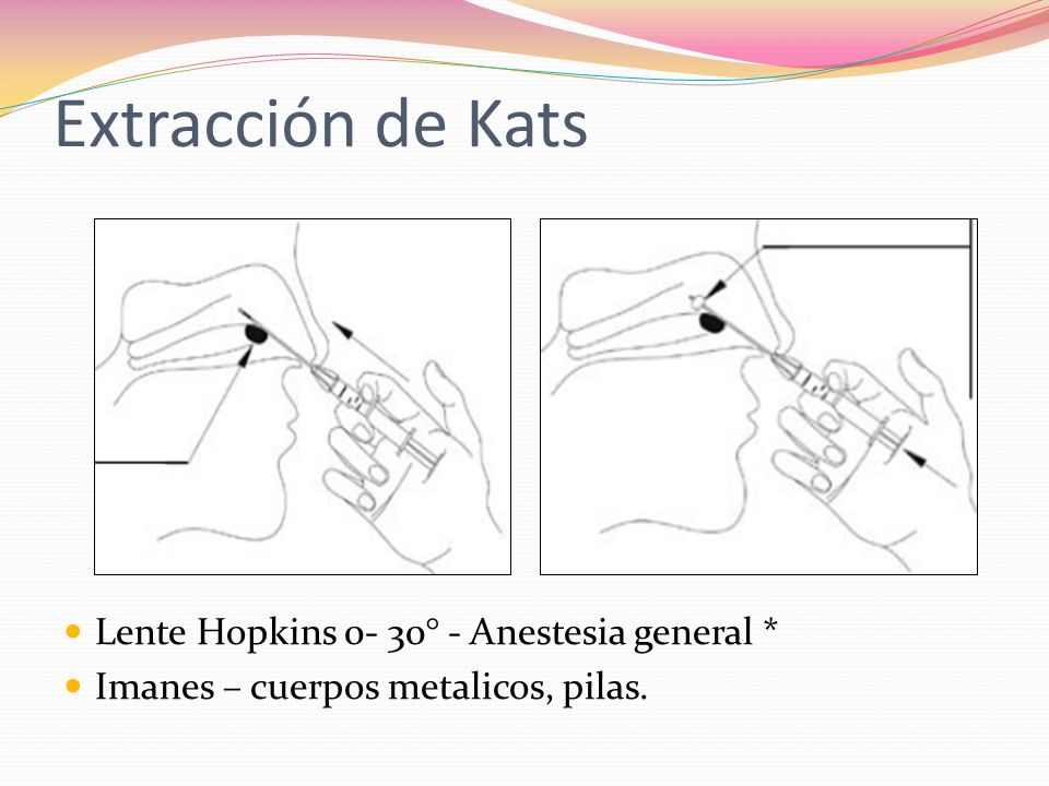 Extracción de Kats Lente Hopkins 0- 30° - Anestesia general *