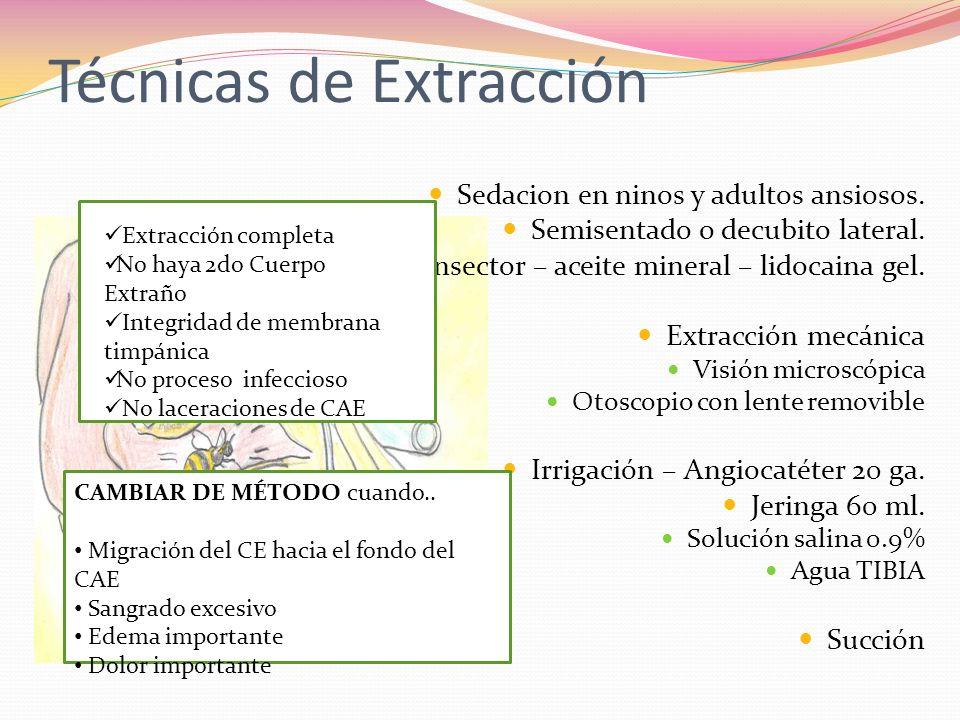 Técnicas de Extracción