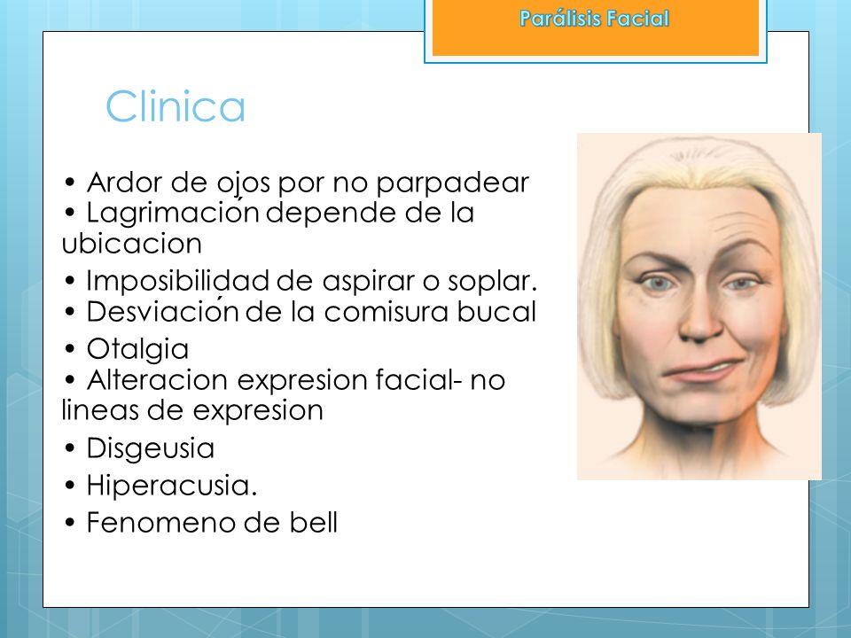 Parálisis FacialClinica. • Ardor de ojos por no parpadear • Lagrimación depende de la ubicacion.