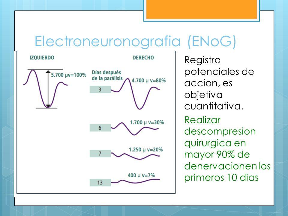 Electroneuronografia (ENoG)