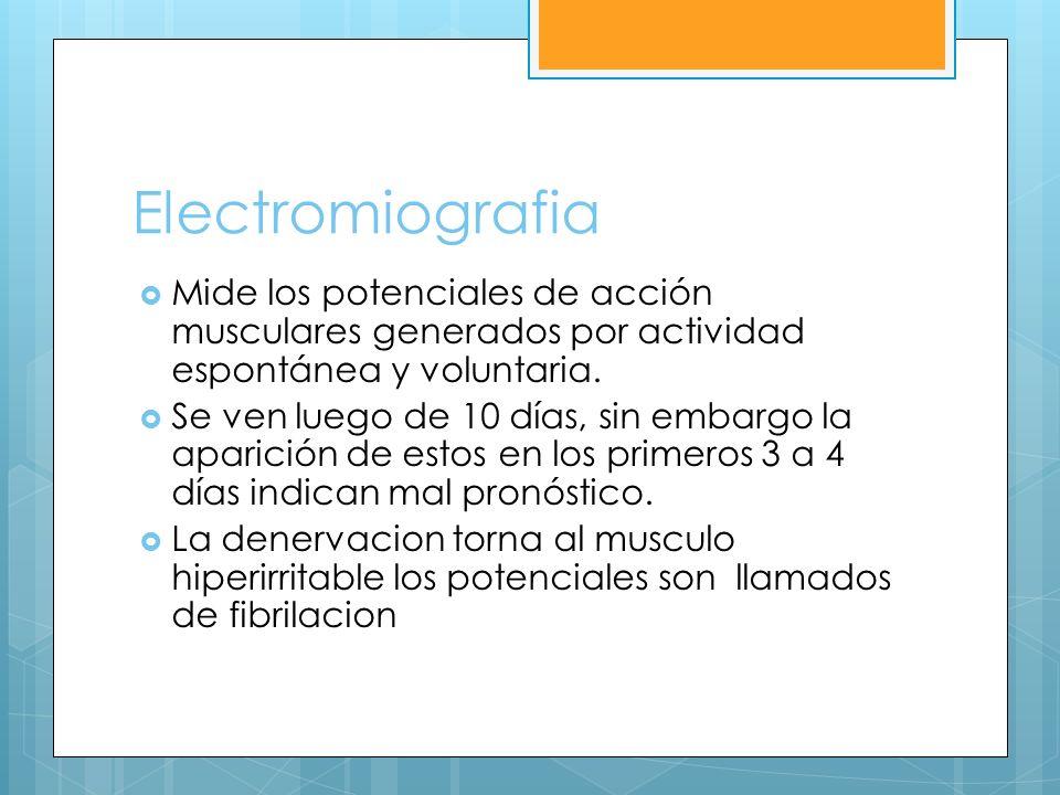 Electromiografia Mide los potenciales de acción musculares generados por actividad espontánea y voluntaria.