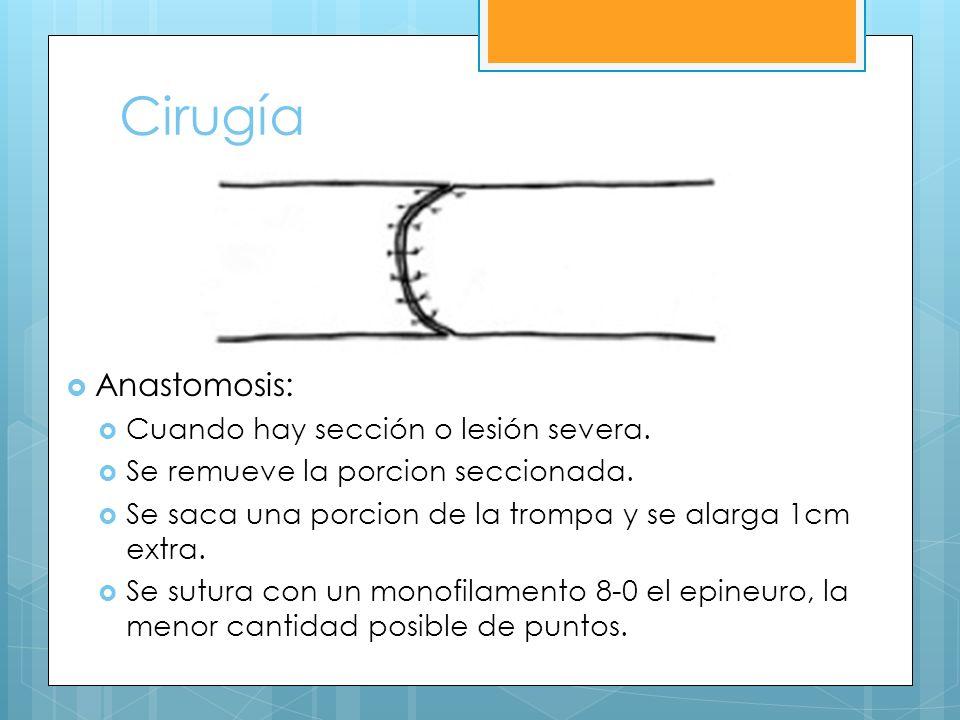 Cirugía Anastomosis: Cuando hay sección o lesión severa.