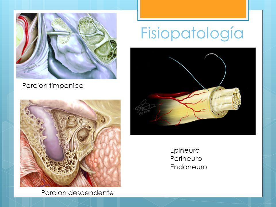 Fisiopatología Porcion timpanica Epineuro Perineuro Endoneuro
