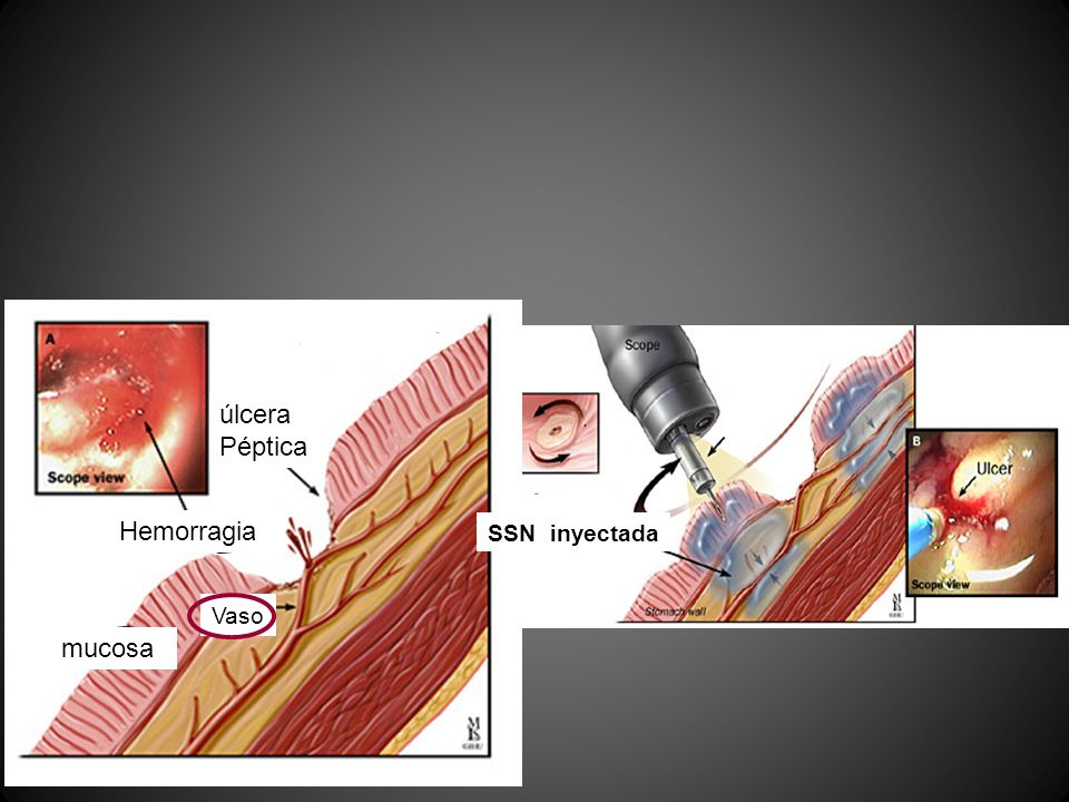 úlcera Péptica Hemorragia SSN inyectada Vaso mucosa