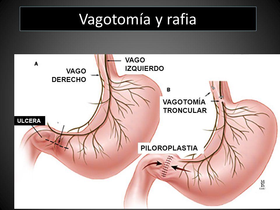 Vagotomía y rafia VAGO IZQUIERDO VAGO DERECHO VAGOTOMÍA TRONCULAR