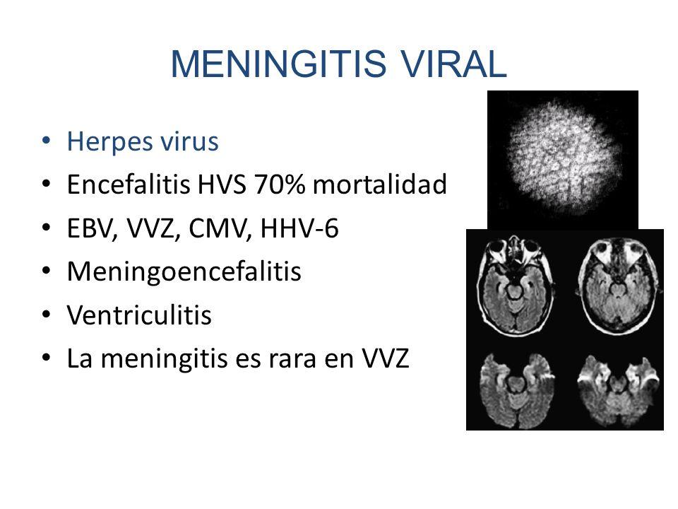 MENINGITIS VIRAL Herpes virus Encefalitis HVS 70% mortalidad