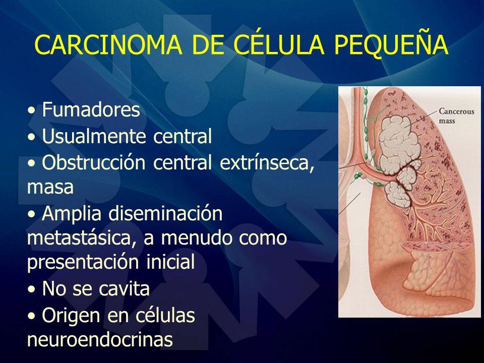 CARCINOMA DE CÉLULA PEQUEÑA