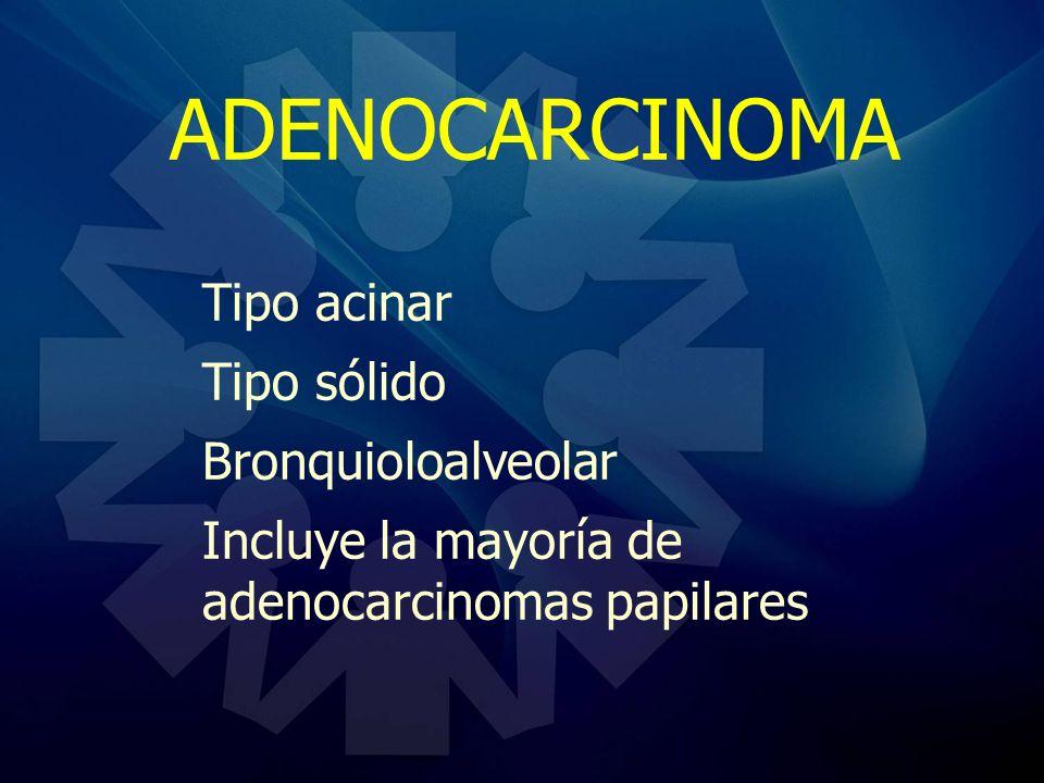 ADENOCARCINOMA Tipo acinar Tipo sólido Bronquioloalveolar
