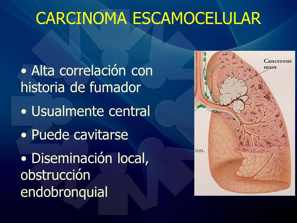CARCINOMA ESCAMOCELULAR