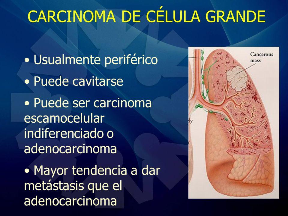 CARCINOMA DE CÉLULA GRANDE