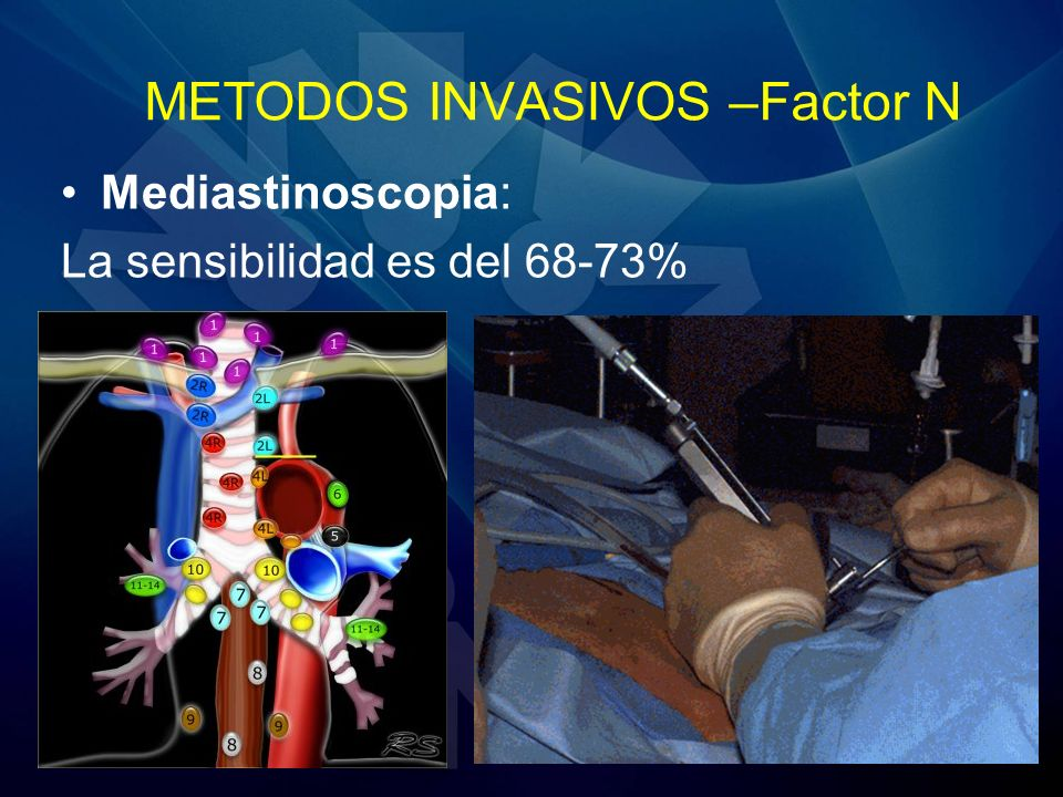 METODOS INVASIVOS –Factor N