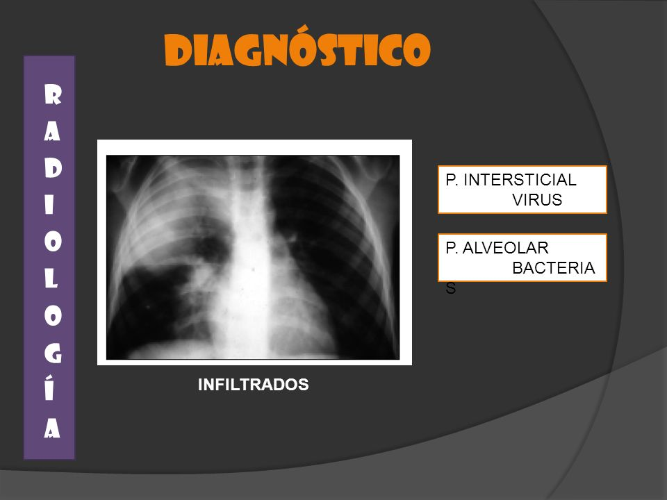 DIAGNÓSTICO RADIOLOGÍA P. INTERSTICIAL VIRUS P. ALVEOLAR BACTERIAS