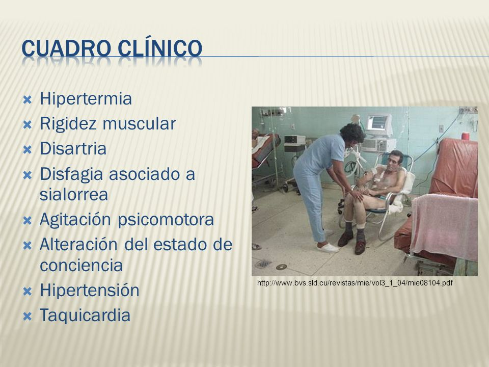 Cuadro Clínico Hipertermia Rigidez muscular Disartria
