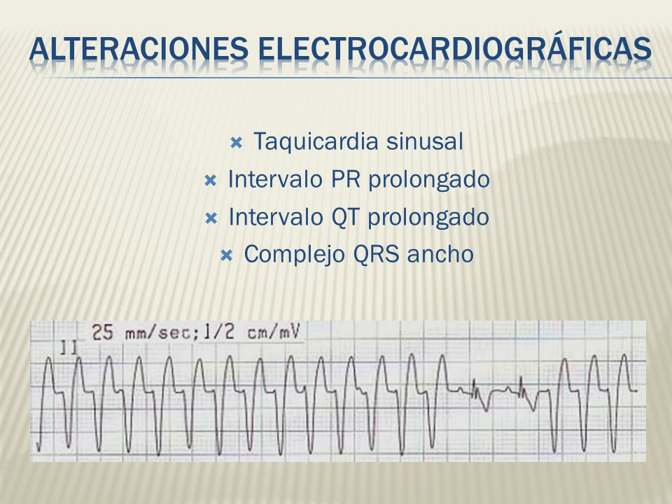 Alteraciones electrocardiográficas