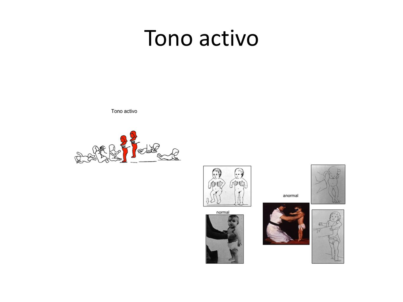 Tono activo