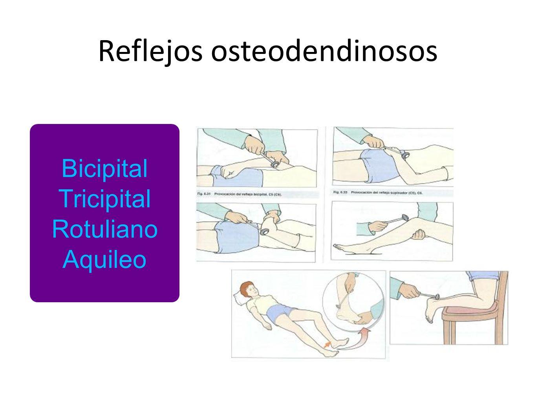 Reflejos osteodendinosos