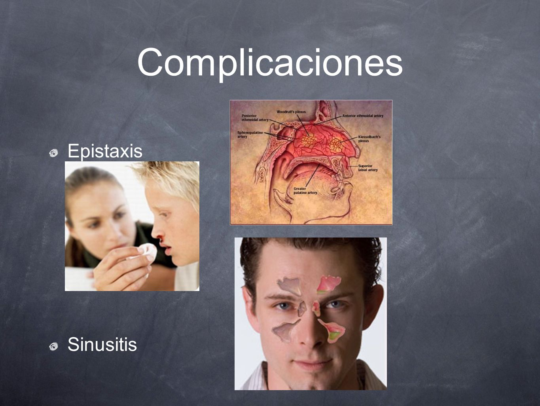 Complicaciones Epistaxis Sinusitis