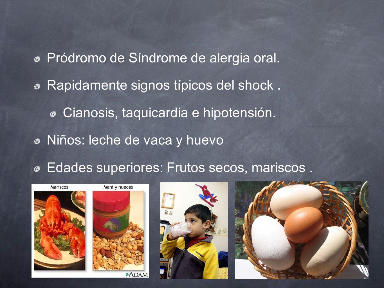 Pródromo de Síndrome de alergia oral.